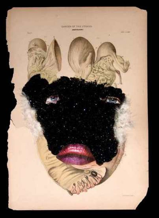 This is an artwork titled Cancer of the Uterus by artist Wangechi Mutu made in 2005